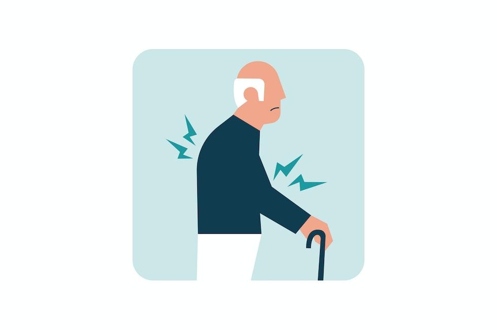 Rigidità muscolare e instabilità posturale, con rischio di cadute e fratture