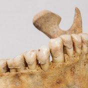 Questa immagine mostra la placca dentale di uno scheletro risalente all'Alto Medioevo