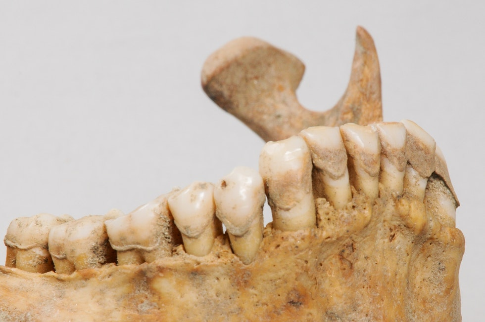 Image showing ancient dental calculus